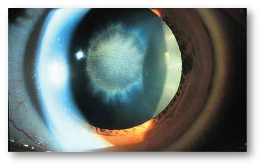Sunflower cataract